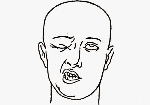 Невропатия лицевого нерва