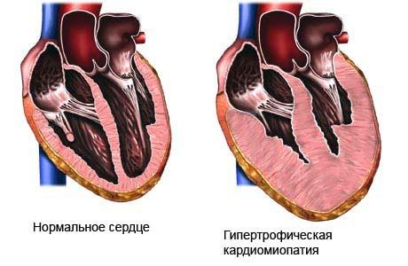 Нормальное сердце и гипертрофическая кардиомиопатия