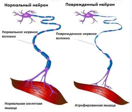 Нормальный и поврежденный нейрон при боковом амиотрофическом склерозе