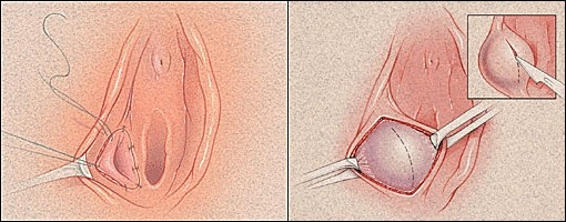 Опухают малые половые губы после секса