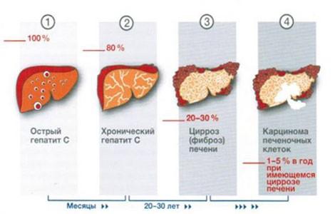 Осложнения вирусного гепатита С