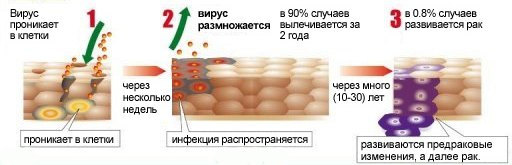 Осложнения ВПЧ-вируса