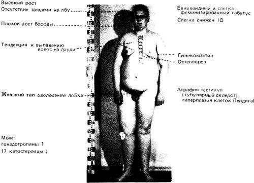 Основные симптомы синдрома Клайнфельтера