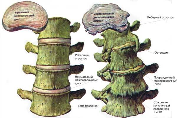 Остеофиты в грудном отделе позвоночника