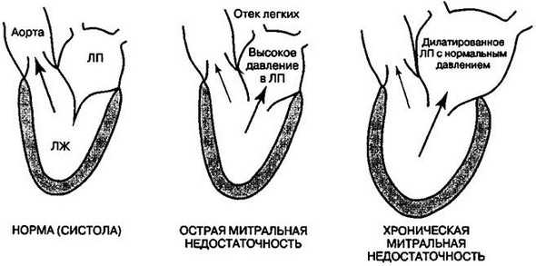 ostraya i khronicheskaya mitralnaya nedostatochnost - Mitral insufficiency development symptoms diagnosis how to treat prognosis