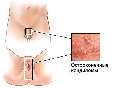Остроконечные кондиломы у мужчин и женщин