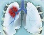 Периферический рак лёгкого