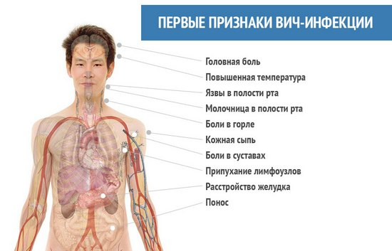 спид симптомы фото у мужчин