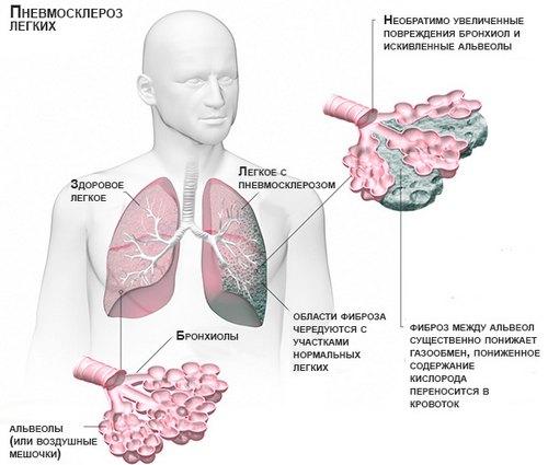 Пневмосклероз лёгких