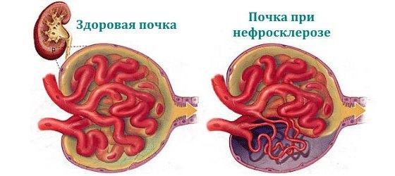 Почка при нефросклерозе