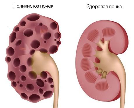 Поликистоз почек у человека лечение 16