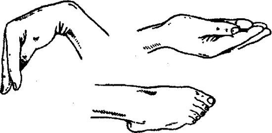 Положение кисти и стопы при тетании