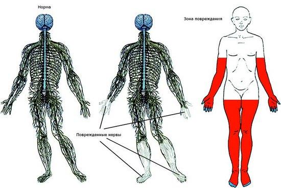 Поражение нервов при полинейропатии