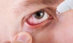 При лечении назначают глазные капли
