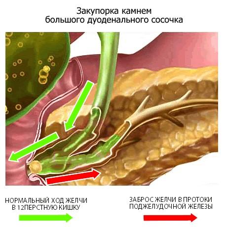 Заброс желчи в желудок: причины, симптомы, лечение