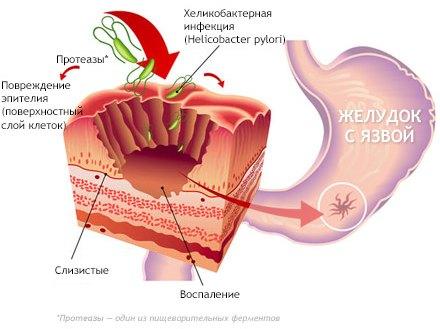 Причины развития прободной язвы желудка