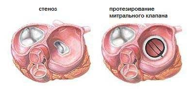 Митральный стеноз: причины, симптомы, стадии и лечение патологии, стеноз митральный клапан симптомы формы стадии диагностика лечение диета осложнения прогноз профилактика причины операция