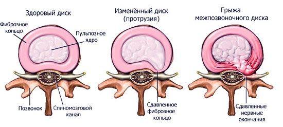Протрузия шейного отдела позвоночника