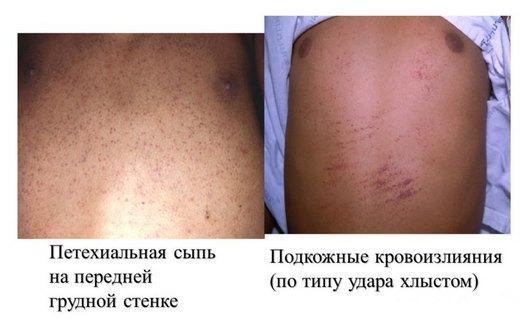 Проявления геморрагического синдрома