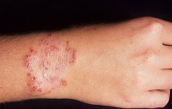 Проявление дерматомикоза