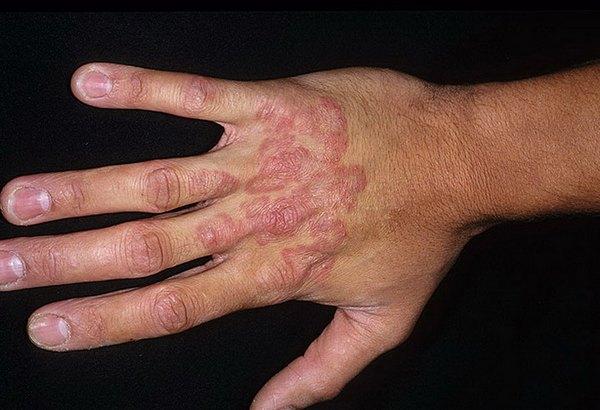 Проявление микоза кожи