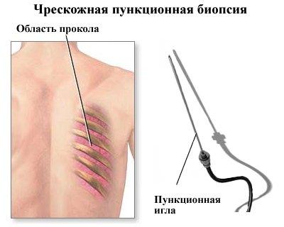 Пункционная биопсия лёгкого