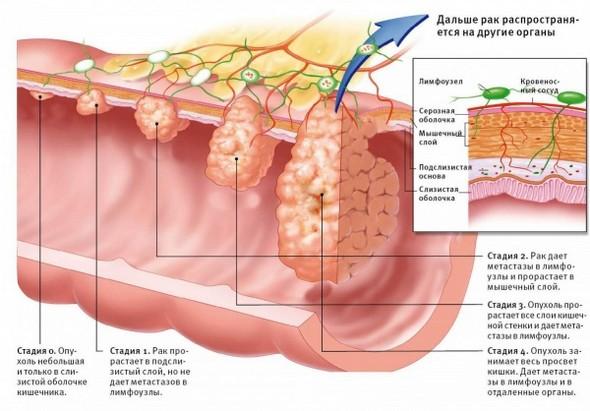 Рак двенадцатипёрстной кишки
