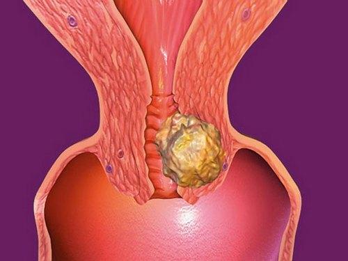 Папилломатоз кожи