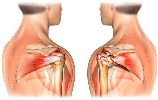 Как колено вылечить может порвалось сухожилие врожденный вывих коленного сустава это