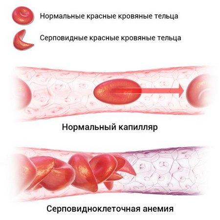 Серповидноклеточная анемия
