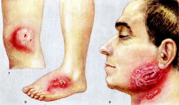 Симптомы актиномикоза