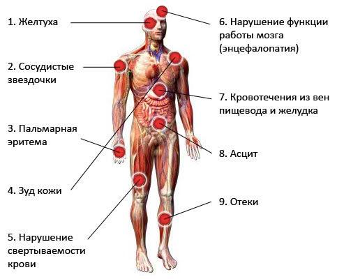 Для лечения печени препараты после алкоголя