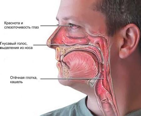 Симптомы аллергического риносинусита