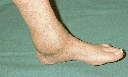 Артроз суставов рук симптомы и лечение