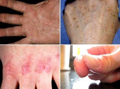 Симптомы авитаминоза на руках
