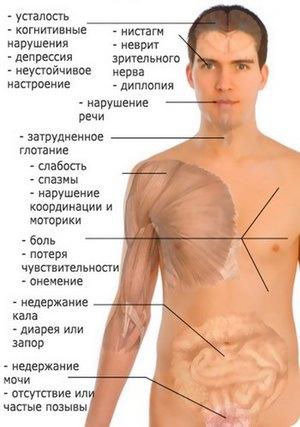 Симптомы энцефаломиелита