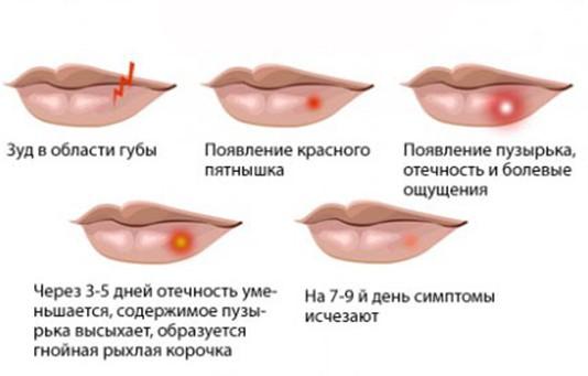 красное пятно на губе фото