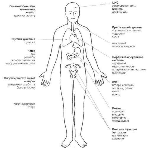 Симптомы хронической почечной недостаточности