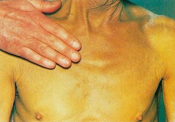 Симптомы механической желтухи