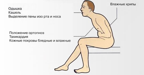 simptomy mitralnoy nedostatochnosti - Mitral insufficiency development symptoms diagnosis how to treat prognosis