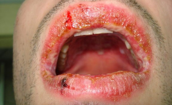 Многоформная экссудативная эритема на слизистой рта