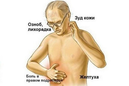 Симптомы опухоли поджелудочной железы