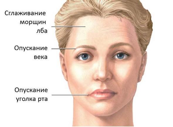 Симптомы пареза лицевого нерва