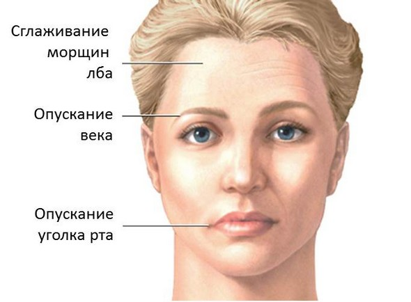 фото паралич лицевого нерва