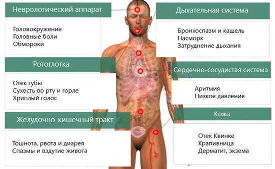 пищевая аллергия фото и лечение