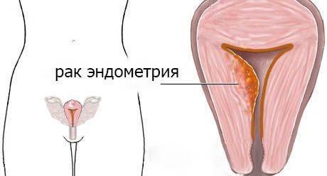 Симптомы рака эндометрия