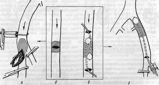 Схема прямой и непрямой эмболэктомии
