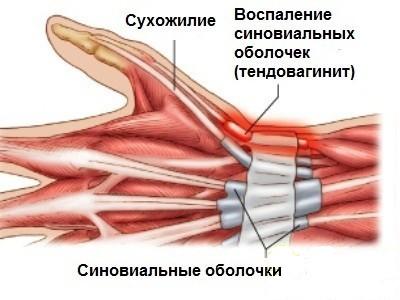 Схематическое изображение тендовагинита