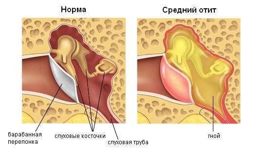 Гнойный отит – симптомы и лечение у взрослых, гнойный отит воспаление среднее ухо внутреннее эпителий микроорганизмы причины симптомы лечение