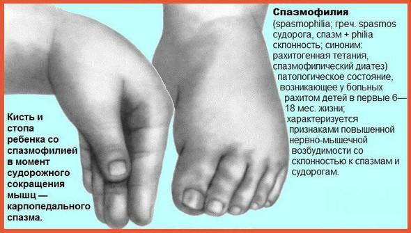 Судороги при рахите у детей